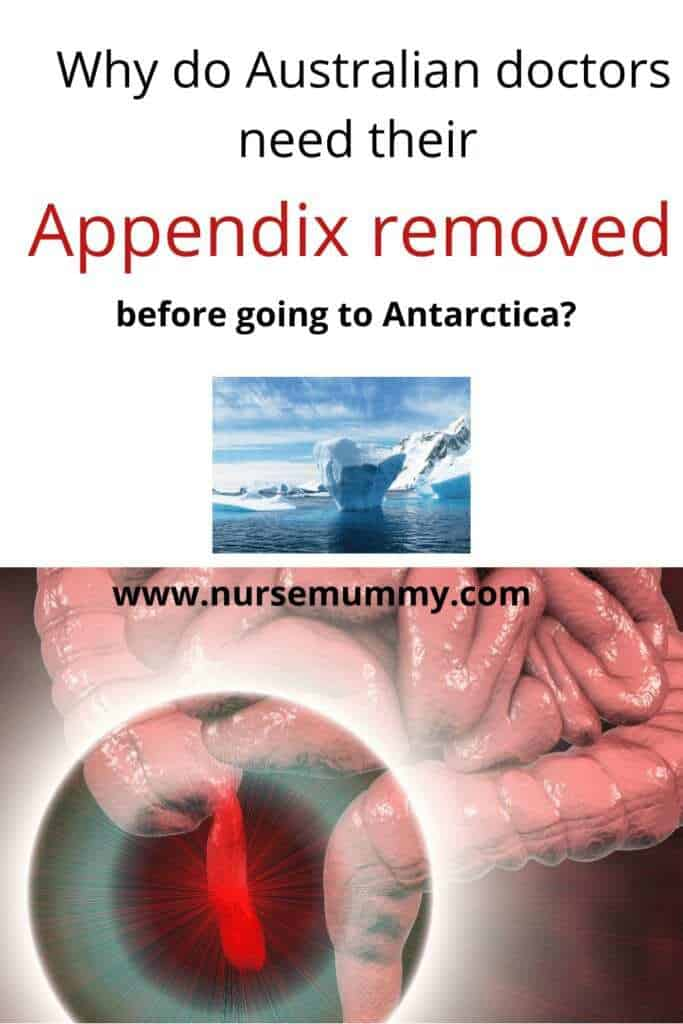 Appendix removal is required by doctors travelling to Antarctica. 10 health facts you dont know#health #healthfacts #learn #appendix