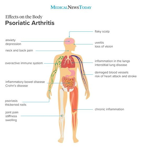 Psoriatic arthritis and the effects on the body