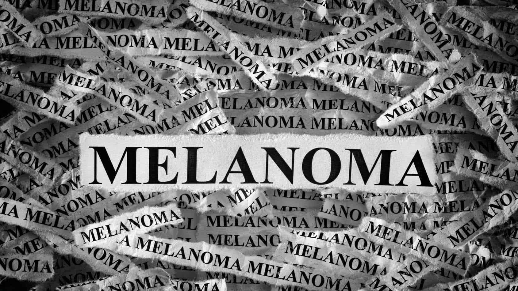 Melanoma and the dangers of not checking your skin