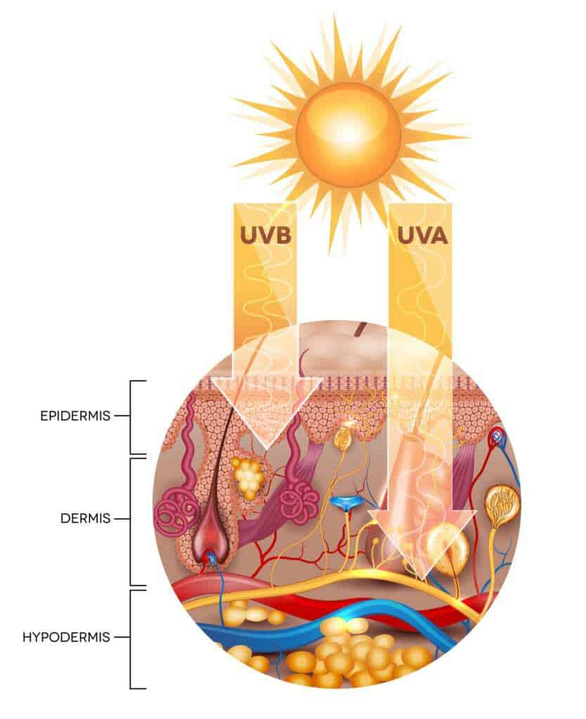 The effects of unprotected skin when exposed to sunlight. Increased risk of DNA mutation and melanomas