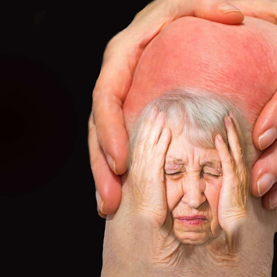 Arthritis and weather related pain