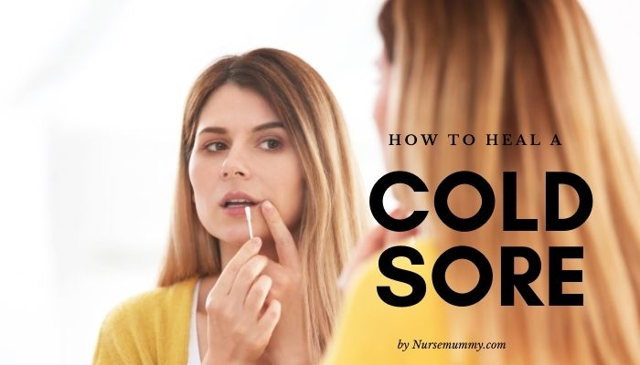 How to heal cold sores fast