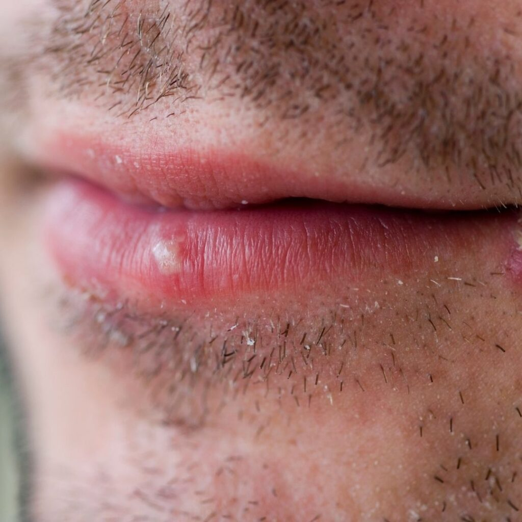 How to heal a coldsore
