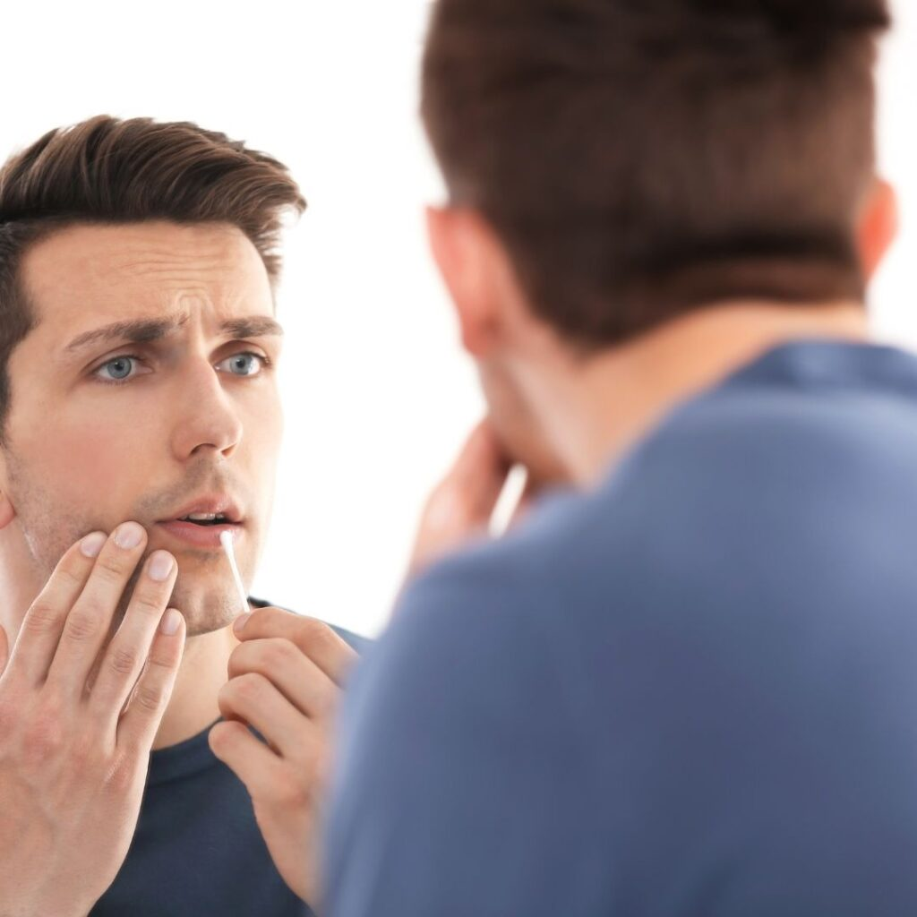 Treatment for cold sores to heal fast